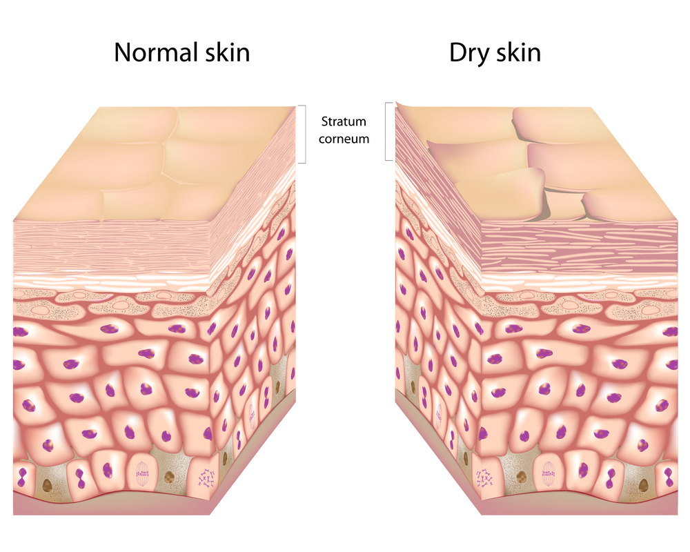 dry skin picture